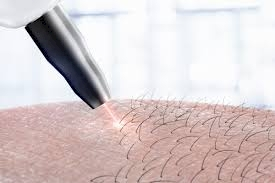 Laser Hair Removal in Queens